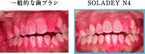 検証1 マイナス電子で「歯垢(プラーク)」は減ったか?