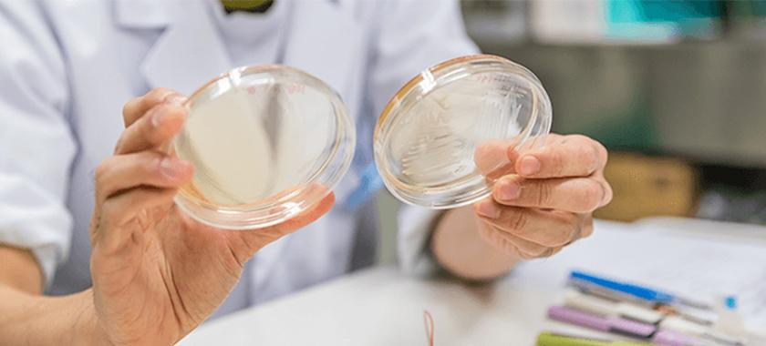 検証 酸化チタンに流す微弱電流を増やすとミュータンス菌は減るか?